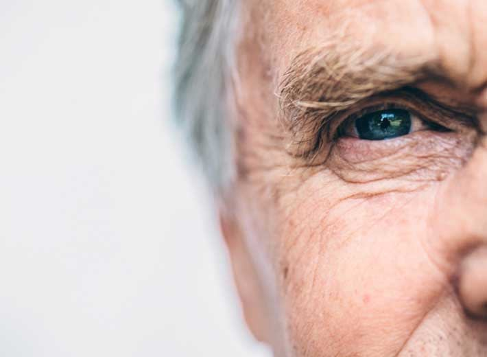 AI-model-usses-retinal-scans-to-predict-alzheimers-disease